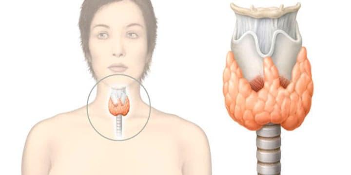 Como-saber-si-tengo-tiroides
